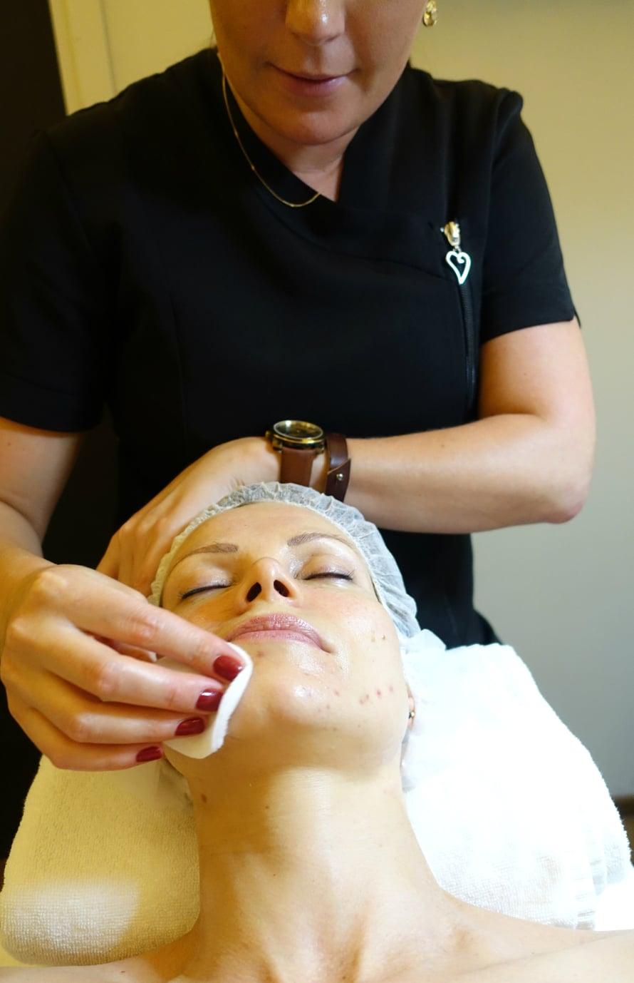 Glykopeel-hoidossa happo levitetään iholle siveltimellä ja sen annetaan vaikuttaa ihon reaktioista riippuen muutamista kymmenistä sekunneista muutamiin minuutteihin. Itselläni käsittelyaikaa pystyttiin pidentämään heti toisella kerralla. Lopuksi happo poistetaan neutralointiaineella.