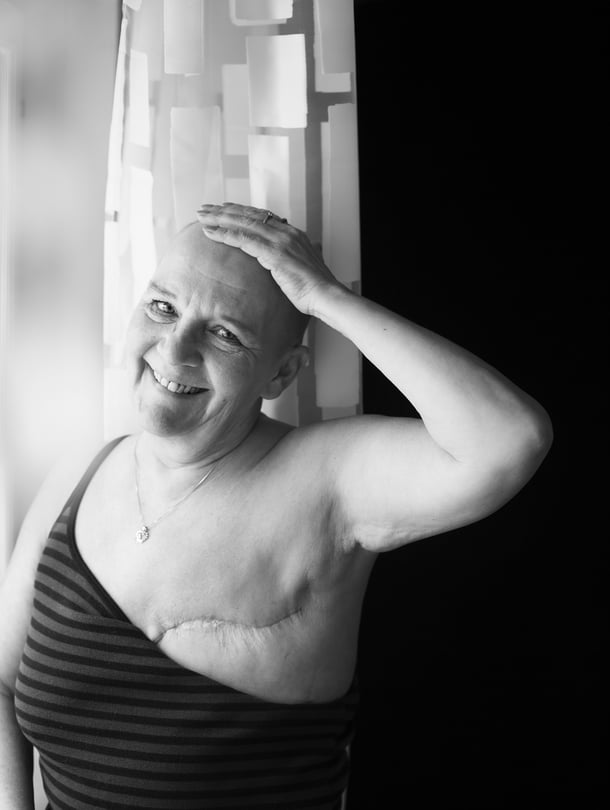 """""""Joskus myöhemmin saan rintaproteesin. Sitten, kun olen parantunut kokonaan."""""""