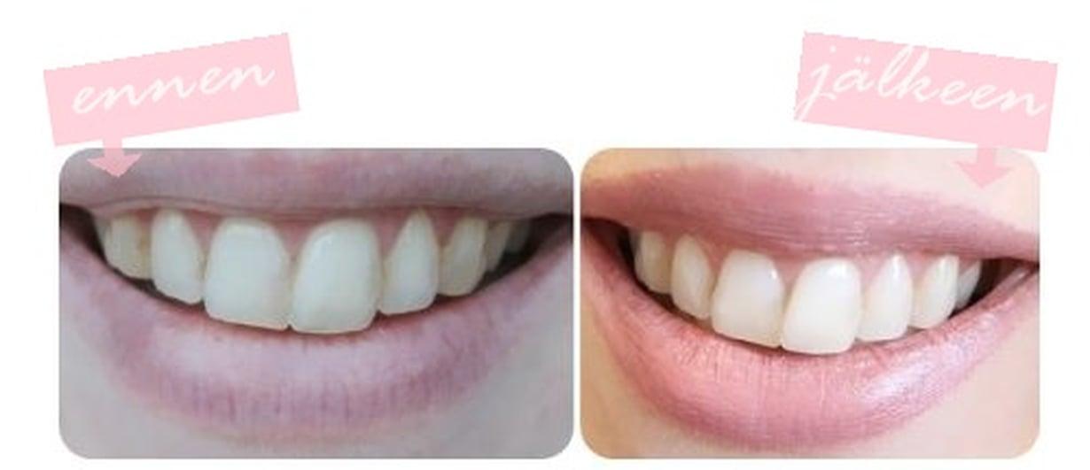 hampvalkaisuennenjalkeen