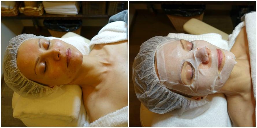 Kuorinnan jälkeen ihoni ei toisella kerralla punoittanut pahasti. Happokäsittelyä seurasi Clean Pore Mask -kuitunaamio, joka rauhoitti ihon.